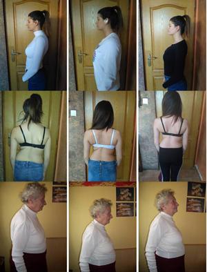 Bizonyított tény, hogy a helyes gerinctartás, a jó idegműködés, a gerinc rendszeres helyretétele, helyremozgatása, közérzetjavító átmozgatása, nagyban hozzájárul a testünk tökéletes működéséhez és ahhoz, hogy ellenálljon a betegségeknek.